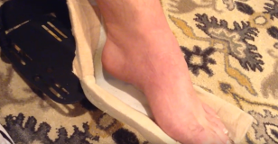 tendon lenthening after tbi for foot and ankle deformity